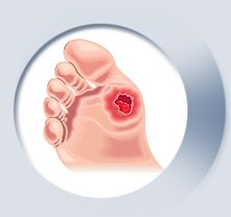 stopa-cukrzycowa